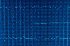 ECG Electrocardiogram Stock Photos