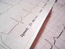 ECG electrocardiography. ECG EKG Electrocardiography paper graph royalty free stock photos