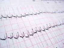 ECG electrocardiography. ECG EKG Electrocardiography paper graph royalty free stock photo