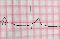 ECG Electrocardiography. Close-up of ECG Electrocardiography stock images