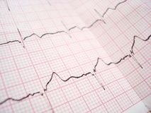 ECG electrocardiography diagram. ECG EKG Electrocardiography paper graph stock image
