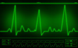ECG Electrocardiography Royalty Free Stock Photos