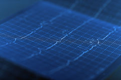 ECG-Elektrocardiogram Stock Foto's