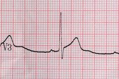 ECG elektrokardiografia Obrazy Stock