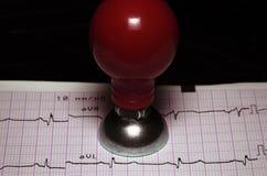 ECG et une électrode en métal. Photo stock