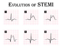 ECG of evolution ( step by step ) of STEMI. ( ST elevation myocardial infarction ) Acute coronary syndrome , angina pectoris Royalty Free Stock Photography