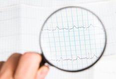ECG-Grafiek Royalty-vrije Stock Fotografie