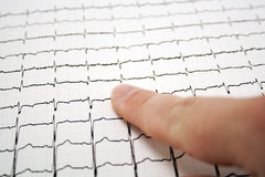 ECG graph Stock Photography