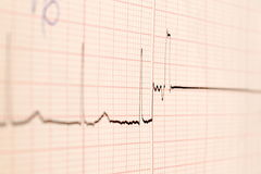 Ecg graph death Stock Photos