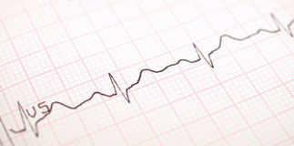 Ecg graph, Electrocardiogram ekg Stock Photo