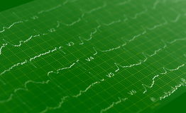 Ecg graph, Electrocardiogram ekg Stock Photography