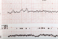 Ecg graph. Electrocardiogram keg of a paient's heart Royalty Free Stock Image