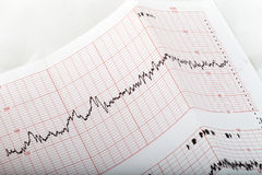 Ecg graph. Electrocardiogram keg of a patient's heart royalty free stock photography