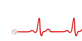 ECG Graph. ECG electrocardiogram Graph with stethoscope Stock Photography