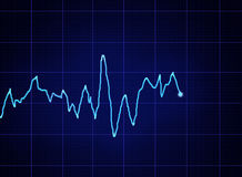 ECG graph Stock Photo