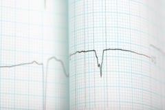 ECG graph medical background Royalty Free Stock Photos