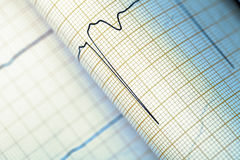 ECG graph, medical textured background Royalty Free Stock Photography