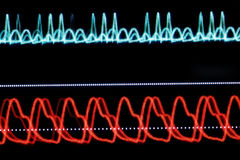 ECG graph on the monitor pixelated Royalty Free Stock Photos