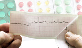 ECG in the hands of doctors against the background of different Royalty Free Stock Photo