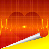 ECG heart Stock Photos