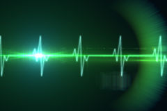 ECG line in black and green. Digitally generated ECG line in black and green Stock Image