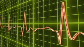 ECG line graph, heart beating in normal sinus rhythm, healthcare and medicine. Stock footage Stock Photo