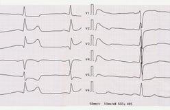 ECG med akut period av den macrofocal senare myocardial infarkten Arkivbild