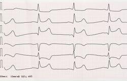 ECG med akut period av macrofocal myocardial infarkt Arkivfoton