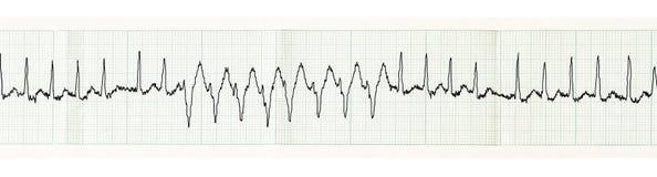 ECG med paroxysm av atrial fibrillation och övergående disturban Arkivfoto