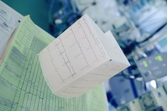 ECG and medical test results in the hospital ward Royalty Free Stock Image