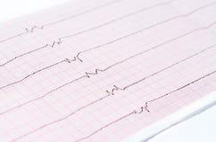ECG met enige ventriculaire complexen en en ventriculaire asystole royalty-vrije stock afbeeldingen