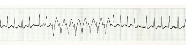 ECG met paroxisme van atrial disturban fibrillatie en tijdelijke werkkracht Stock Foto