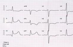 ECG mit akutem Zeitraum des groß-fokalen hinteren diaphragmatischen Myokardinfarkts Lizenzfreie Stockbilder