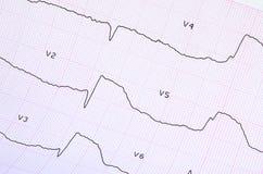 ECG mit akutem Zeitraum des groß-fokalen weit verbreiteten vorhergehenden Myokardinfarkts Lizenzfreie Stockbilder