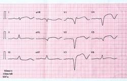 ECG mit akutem Zeitraum des groß-fokalen weit verbreiteten vorhergehenden Myokardinfarkts Stockbild