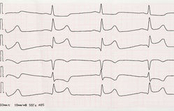 ECG mit akutem Zeitraum des macrofocal Myokardinfarkts Stockfotos