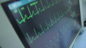 ECG-Monitor mit Daten stock footage
