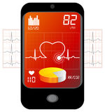 ECG Monitoring - Illustration Stock Photos