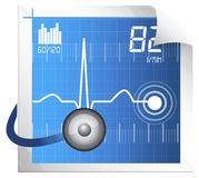 ECG Monitoring Stock Image