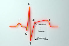 ECG in myocardial infarction. Illustration showing ST elevation, labeled image. ECG in myocardial infarction. 3D illustration showing ST elevation, labeled image Royalty Free Stock Photos