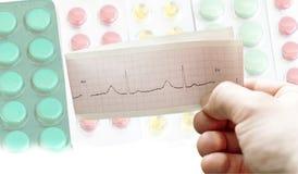 ECG nas mãos dos doutores na perspectiva de diferente Fotos de Stock Royalty Free