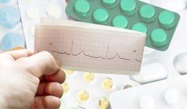 ECG nas mãos dos doutores na perspectiva de diferente Imagens de Stock Royalty Free