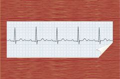 ECG on paper. Patient's electrocardiogram on paper in the hospital Royalty Free Stock Images