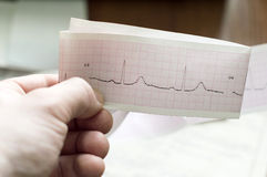 ECG of the patient in the doctor's hands Royalty Free Stock Photography