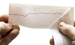 ECG of the patient in the doctor's hands Stock Images