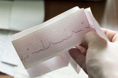 ECG of the patient in the doctors hands Royalty Free Stock Photography