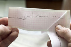 ECG of the patient in the doctors hands Royalty Free Stock Images