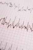 ECG print out Royalty Free Stock Images