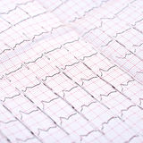 ECG printout. Closeup of ECG printout photo Royalty Free Stock Images