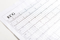 ECG printout. Close up of ECG graph (electrocardiograph),electrocardiogram is invaluable diagnostic tool in modern medicine royalty free stock images